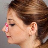 گیره فرم دهنده و کوچک کننده بینی